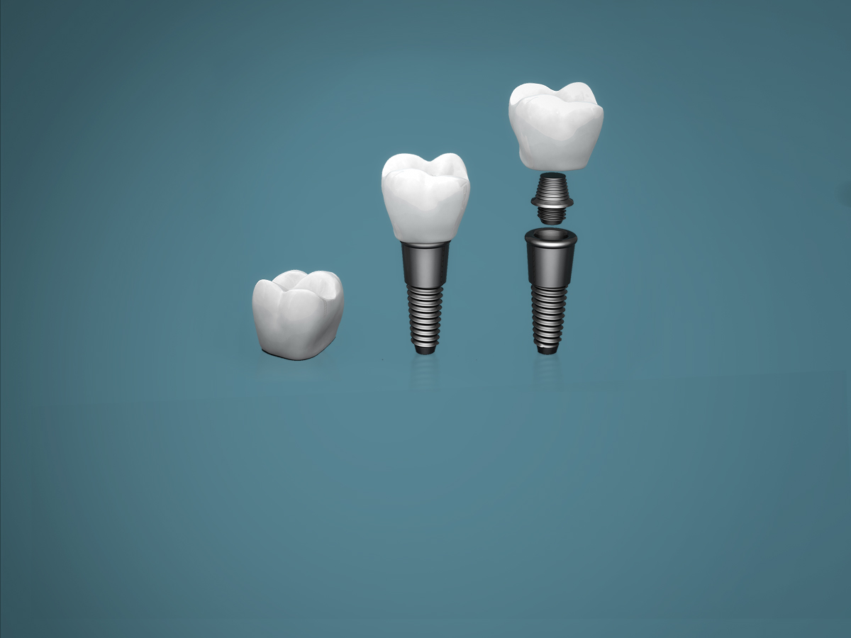 Implants and dental surgery